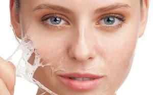 Tratamientos Faciales en Madrid se encarga de dar brillo y salud al rostro